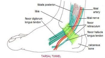 TARSAL-TUNNEL-PAIN
